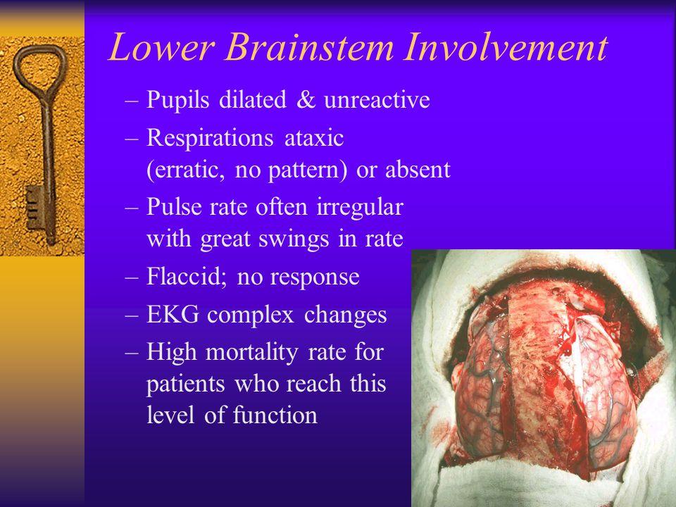 Lower Brainstem Involvement