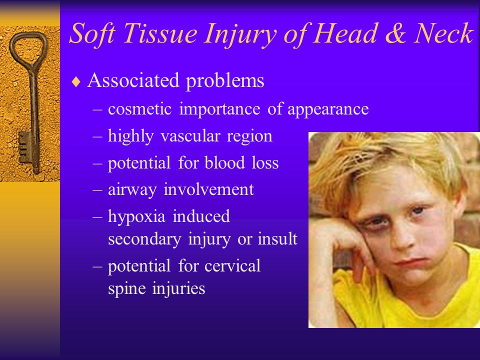Soft Tissue Injury of Head & Neck