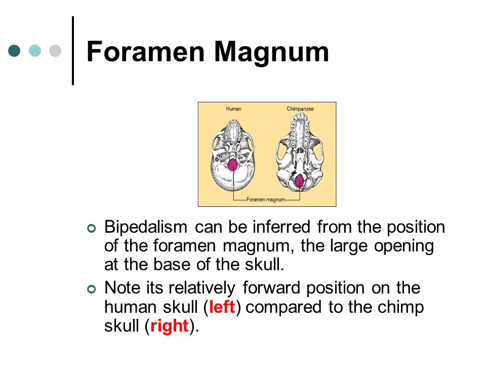 Foramen Magnum Bipedalism can be inferred from the position of the foramen magnum, the large opening at the base of the skull.