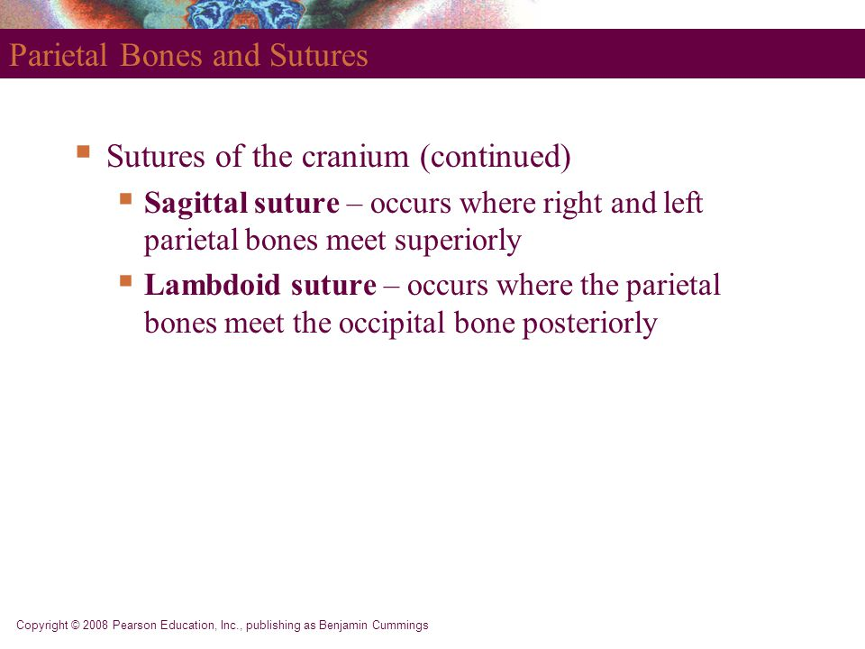 Parietal Bones and Sutures