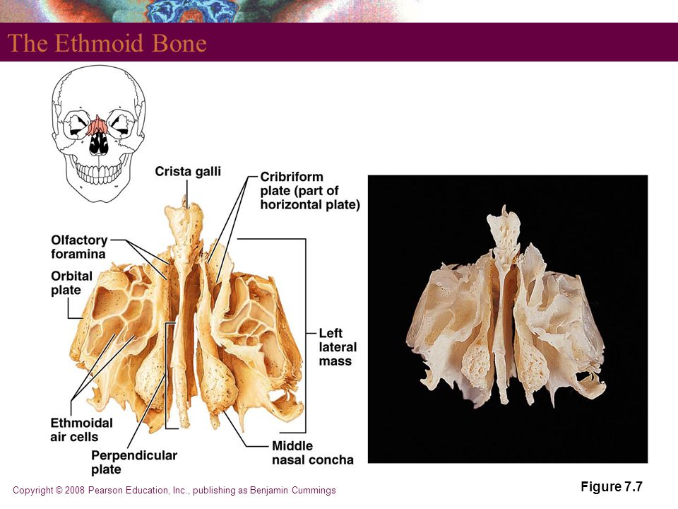 The Ethmoid Bone Figure 7.7