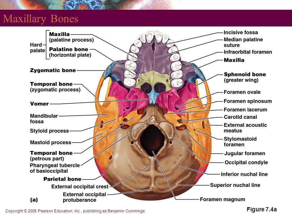 Maxillary Bones Figure 7.4a