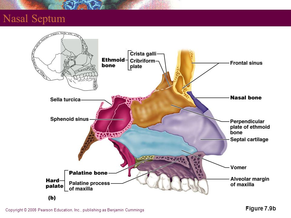 Nasal Septum Figure 7.9b Copyright © 2008 Pearson Education, Inc., publishing as Benjamin Cummings