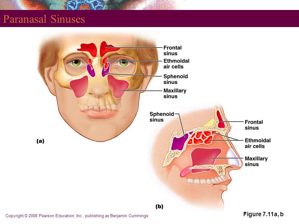 Paranasal Sinuses Figure 7.11a, b
