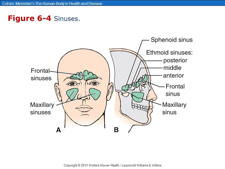 Figure 6-4 Sinuses.