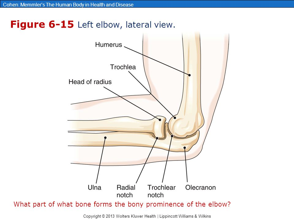 Figure 6-15 Left elbow, lateral view.