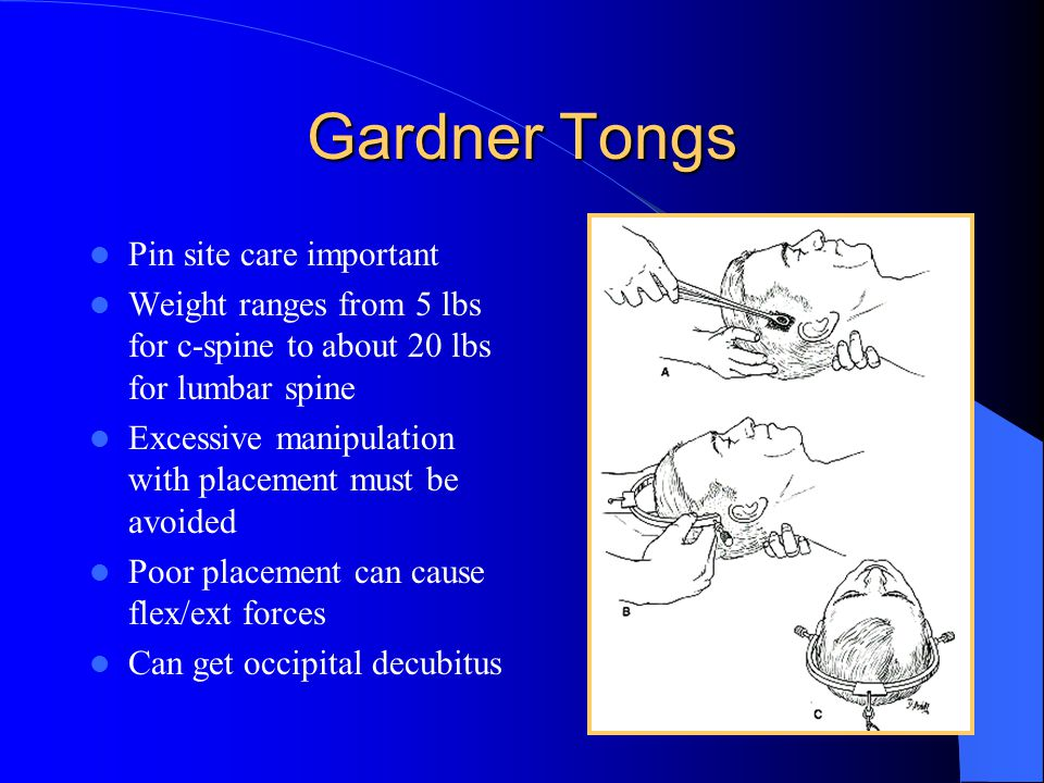 Gardner Tongs Pin site care important