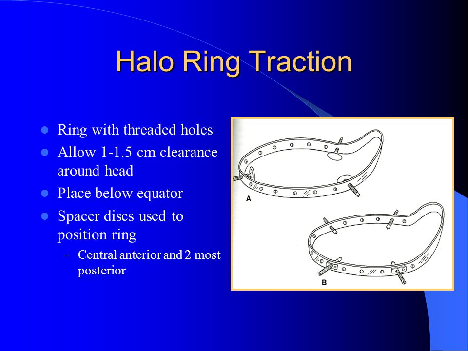 Halo Ring Traction Ring with threaded holes