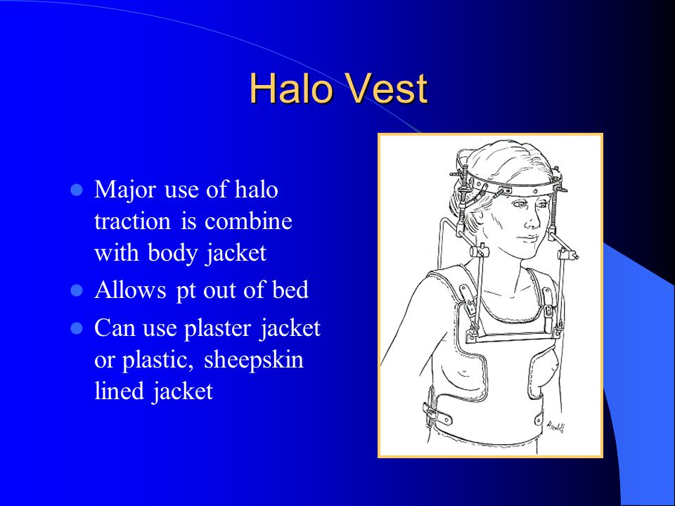 Halo Vest Major use of halo traction is combine with body jacket