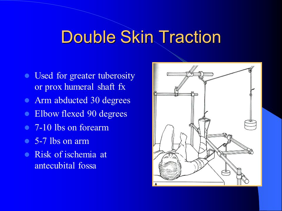 Double Skin Traction Used for greater tuberosity or prox humeral shaft fx. Arm abducted 30 degrees.