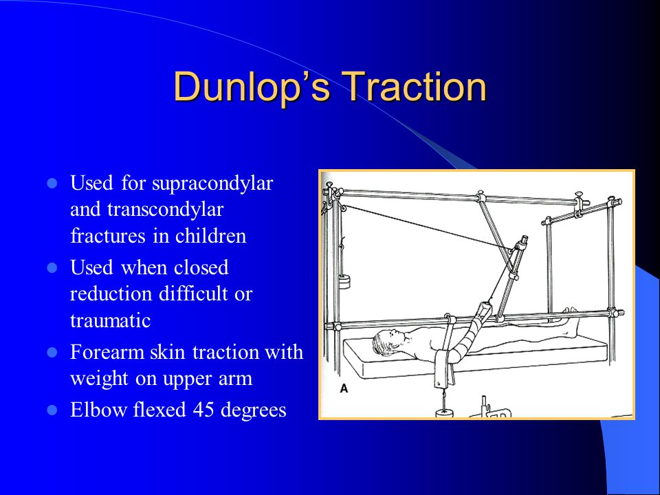 Dunlop's Traction Used for supracondylar and transcondylar fractures in children. Used when closed reduction difficult or traumatic.