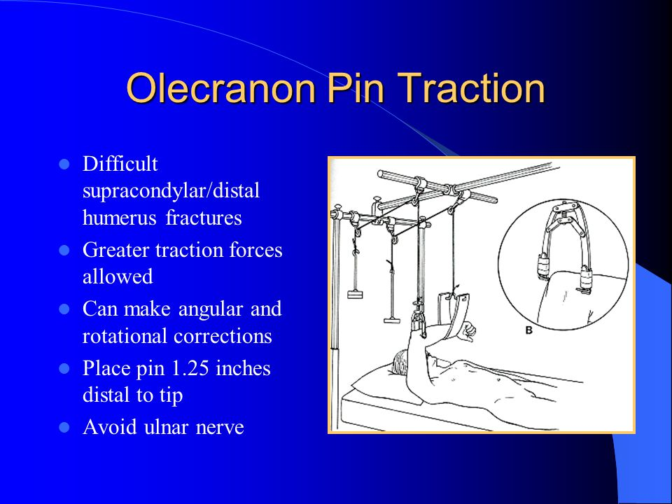 Olecranon Pin Traction