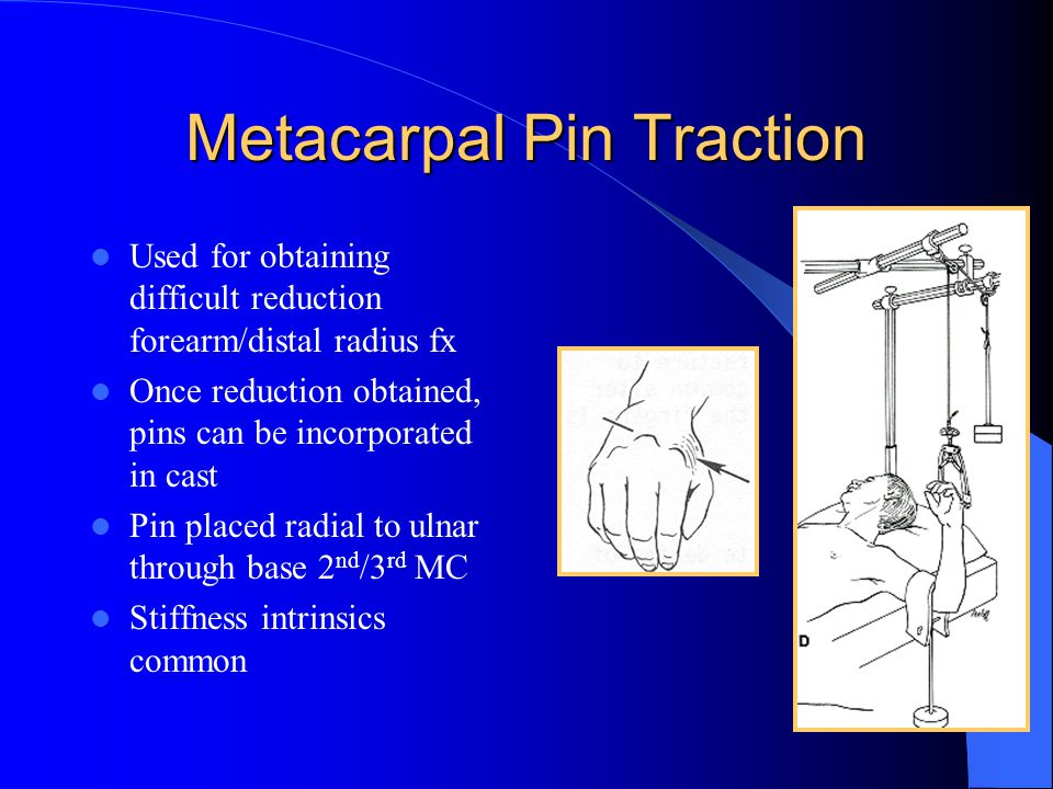 Metacarpal Pin Traction