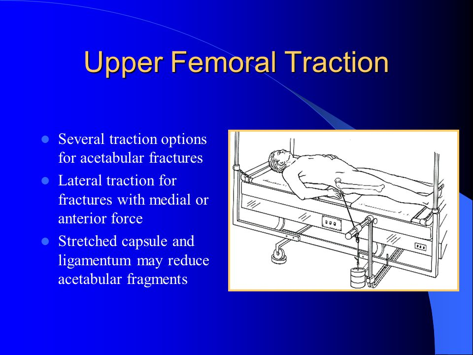 Upper Femoral Traction