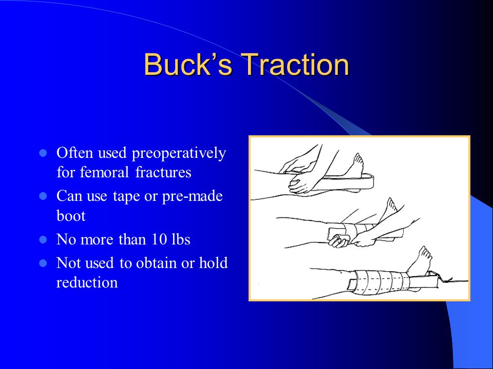 Buck's Traction Often used preoperatively for femoral fractures