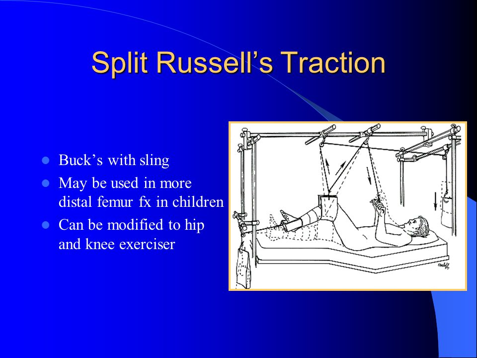 Split Russell's Traction