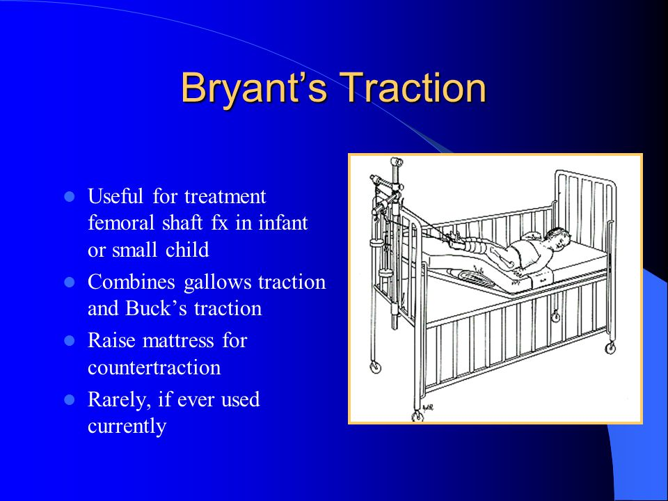 Bryant's Traction Useful for treatment femoral shaft fx in infant or small child. Combines gallows traction and Buck's traction.
