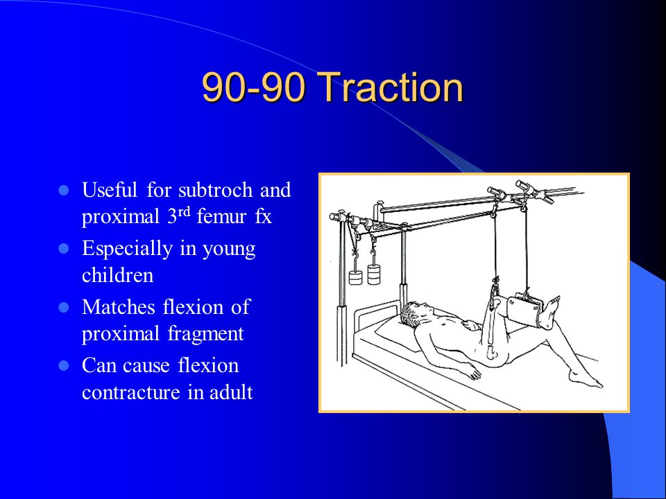 90-90 Traction Useful for subtroch and proximal 3rd femur fx