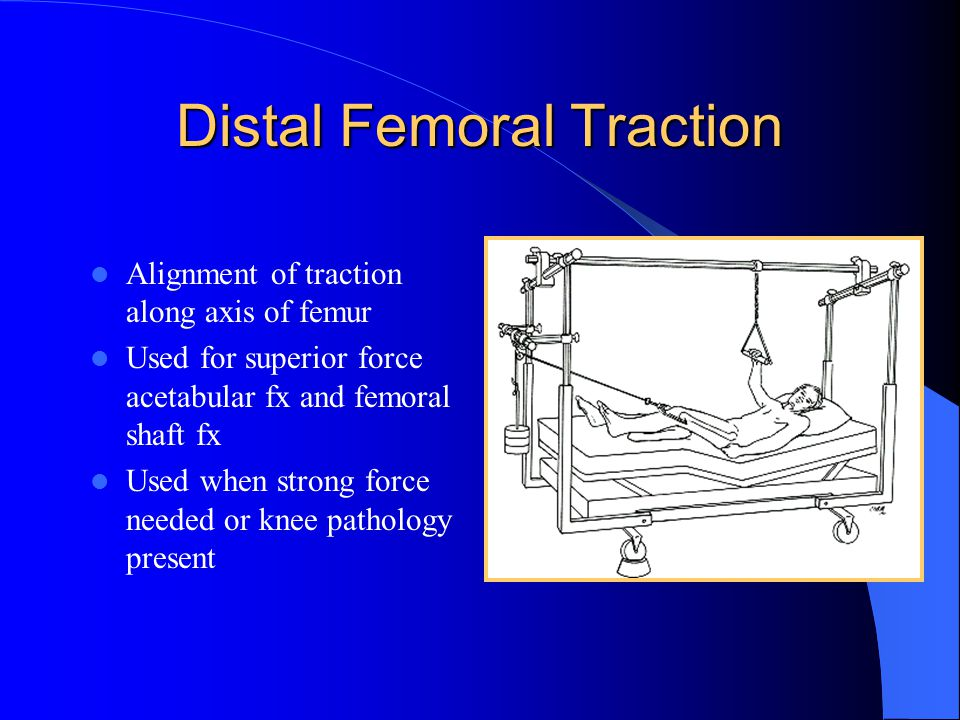 Distal Femoral Traction