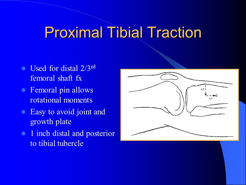 Proximal Tibial Traction