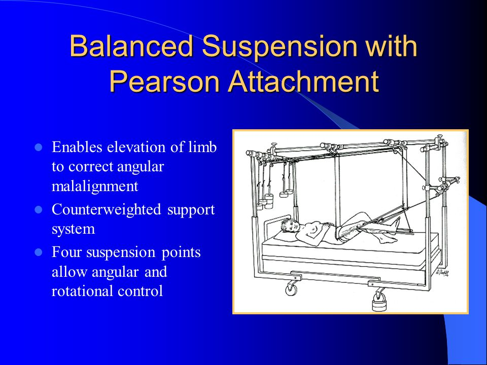 Balanced Suspension with Pearson Attachment