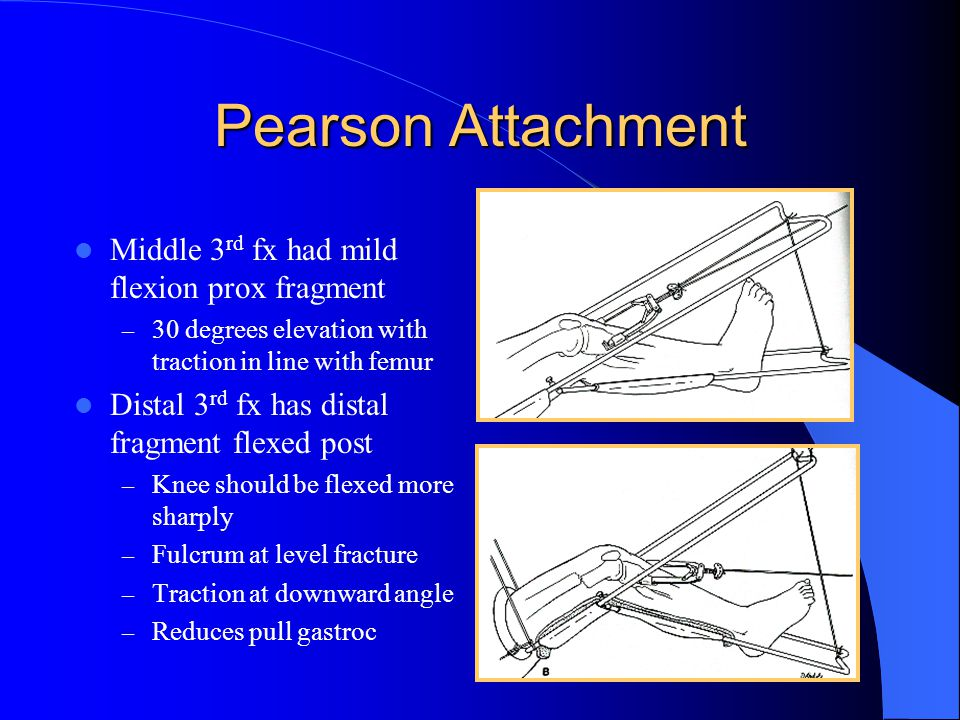 Pearson Attachment Middle 3rd fx had mild flexion prox fragment
