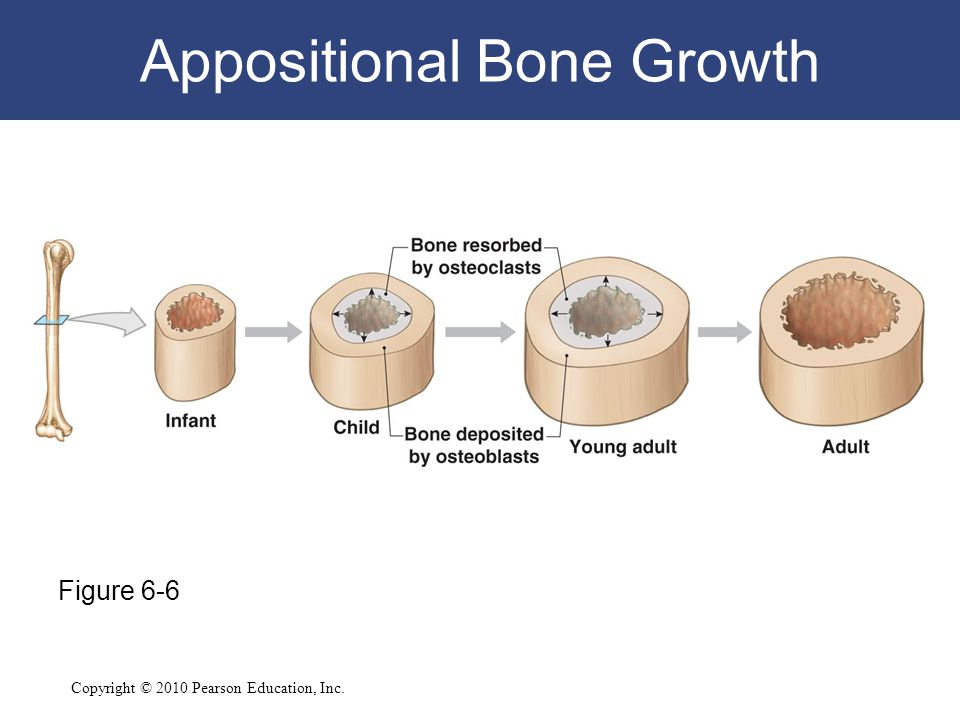 Appositional Bone Growth