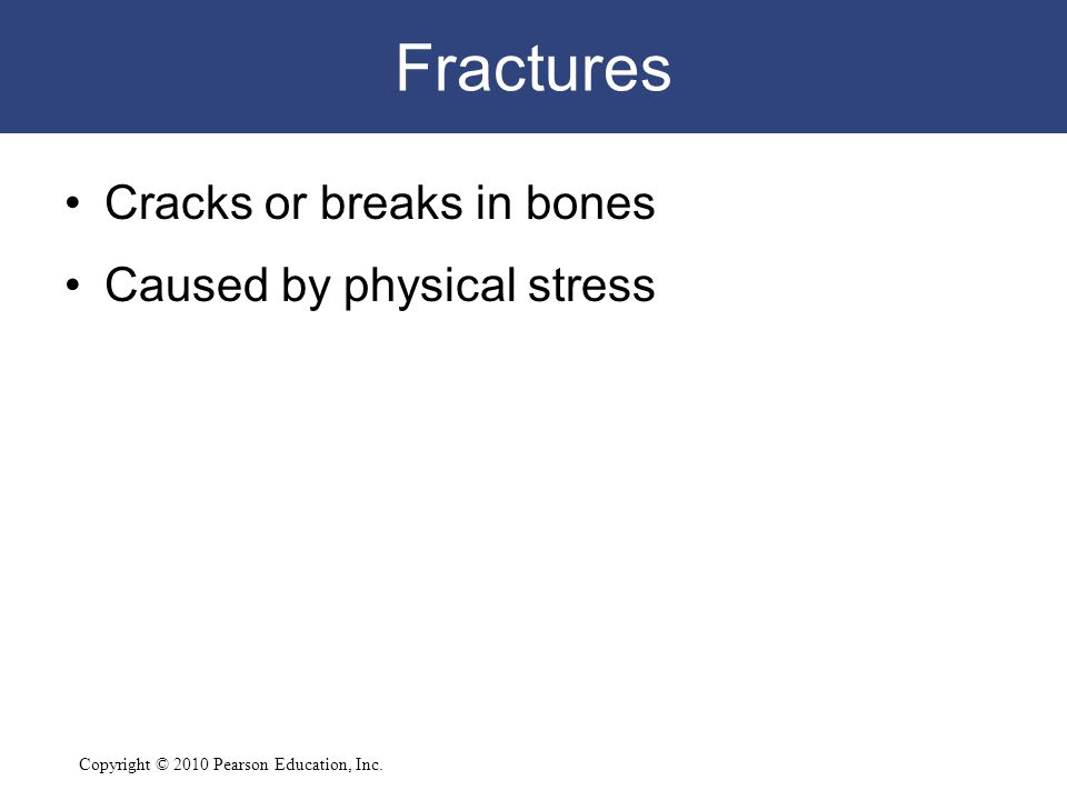 Fractures Cracks or breaks in bones Caused by physical stress