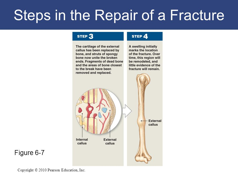 Steps in the Repair of a Fracture