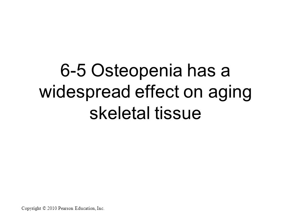 6-5 Osteopenia has a widespread effect on aging skeletal tissue