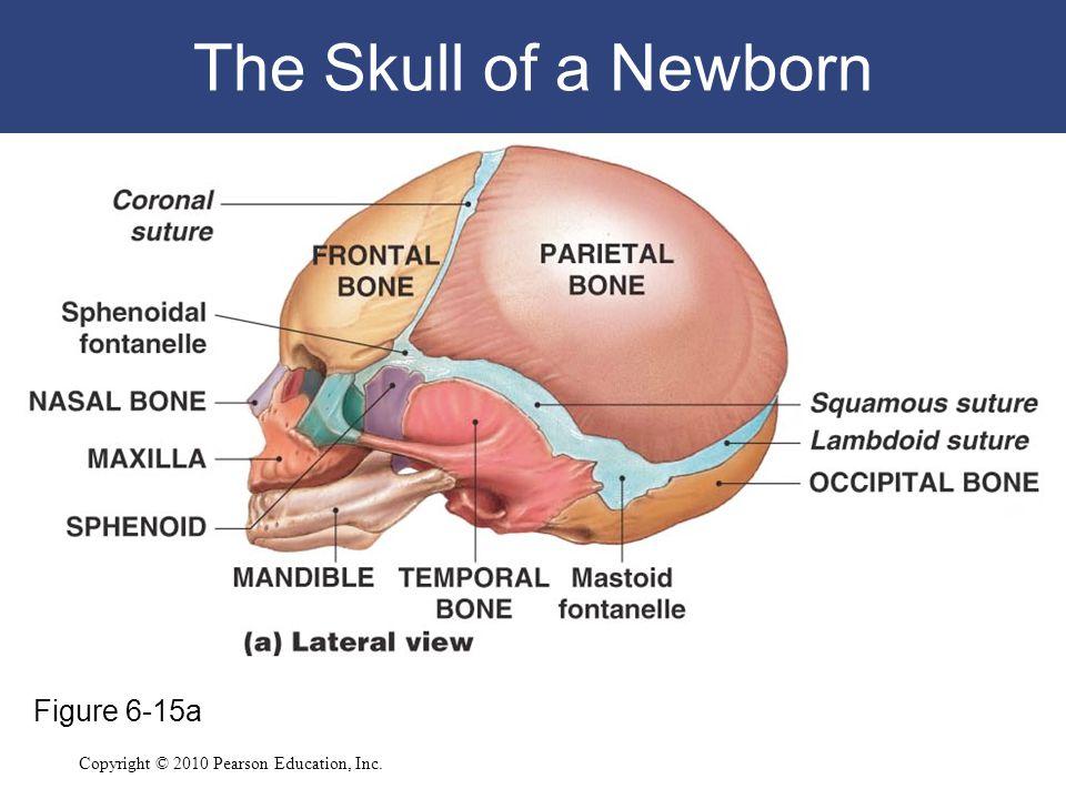 The Skull of a Newborn Figure 6-15a