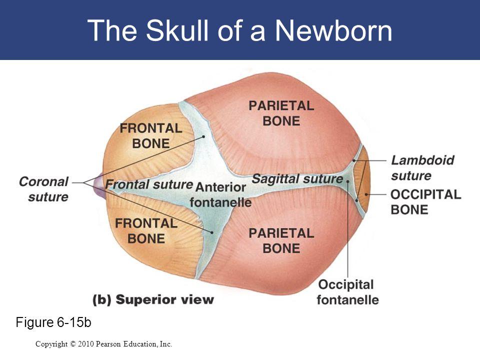 The Skull of a Newborn Figure 6-15b