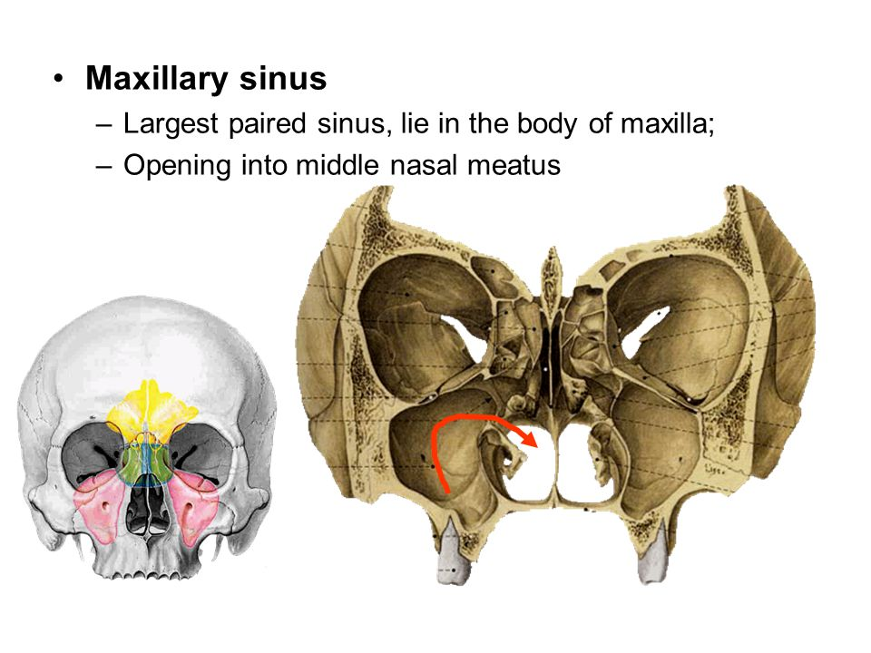 Maxillary sinus Largest paired sinus, lie in the body of maxilla;