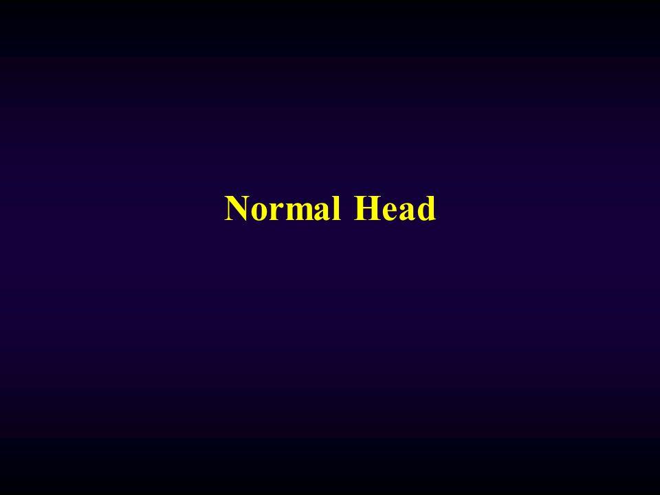 Normal Head
