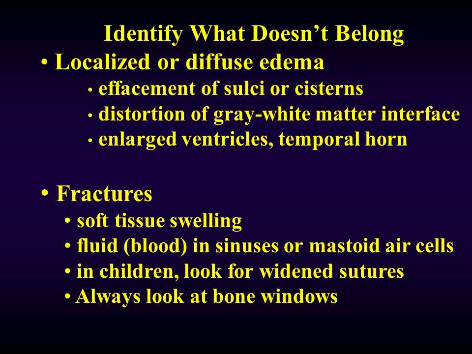 Identify What Doesn't Belong