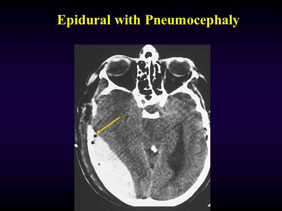 Epidural with Pneumocephaly