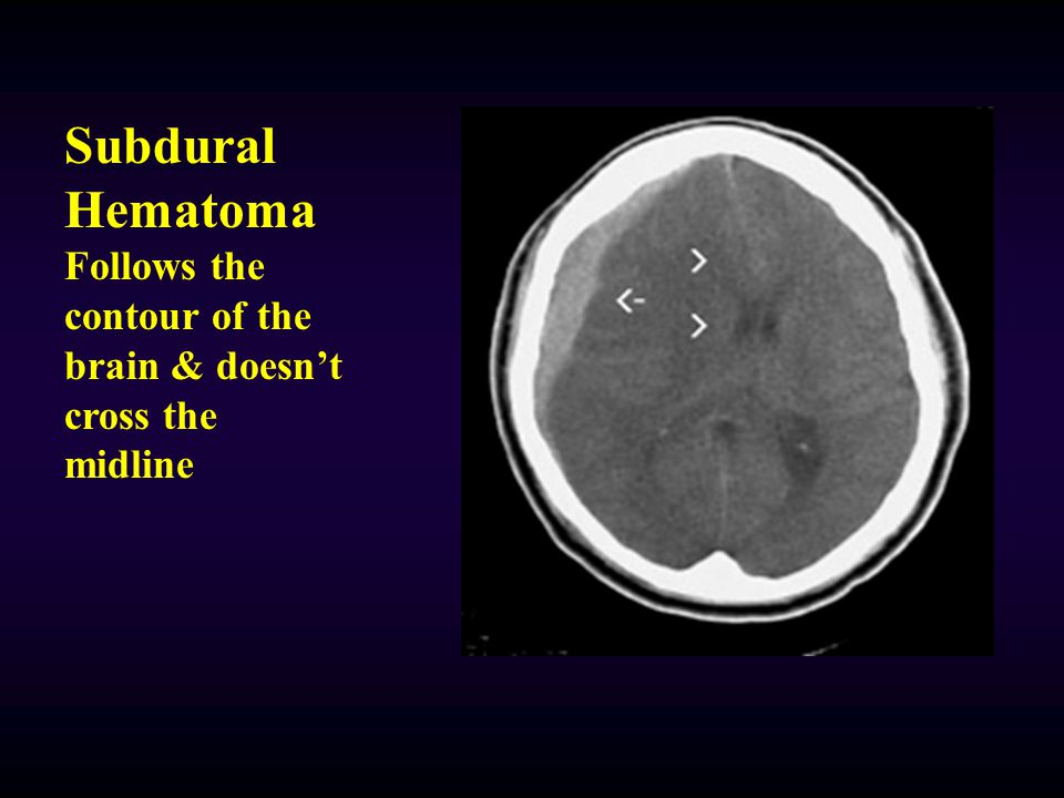 Subdural Hematoma Follows the contour of the brain & doesn't cross the midline