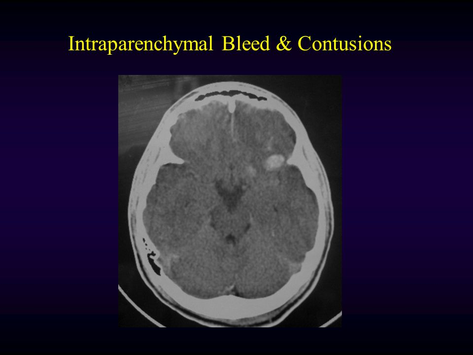 Intraparenchymal Bleed & Contusions