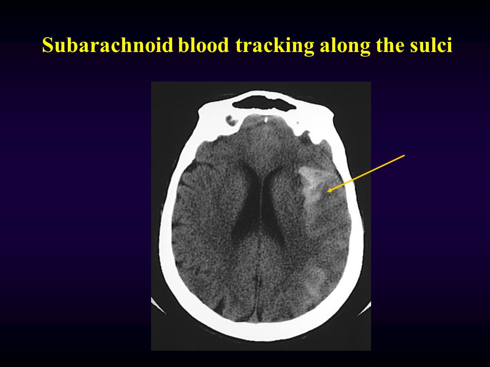 Subarachnoid blood tracking along the sulci