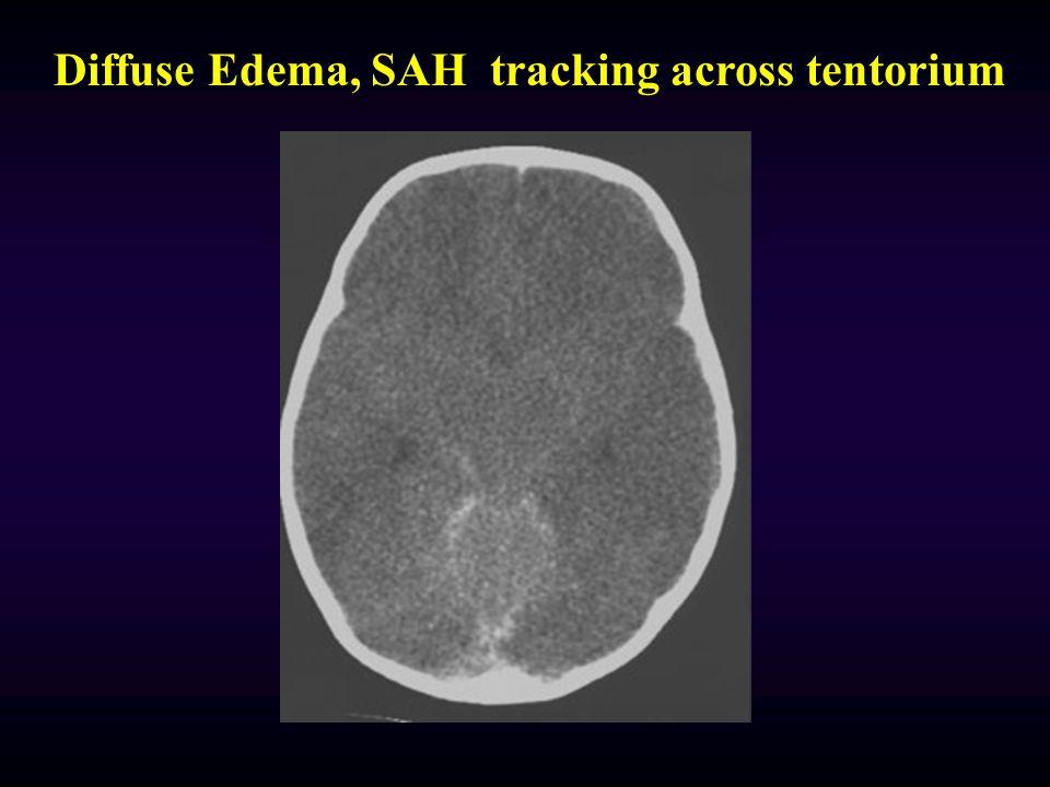 Diffuse Edema, SAH tracking across tentorium