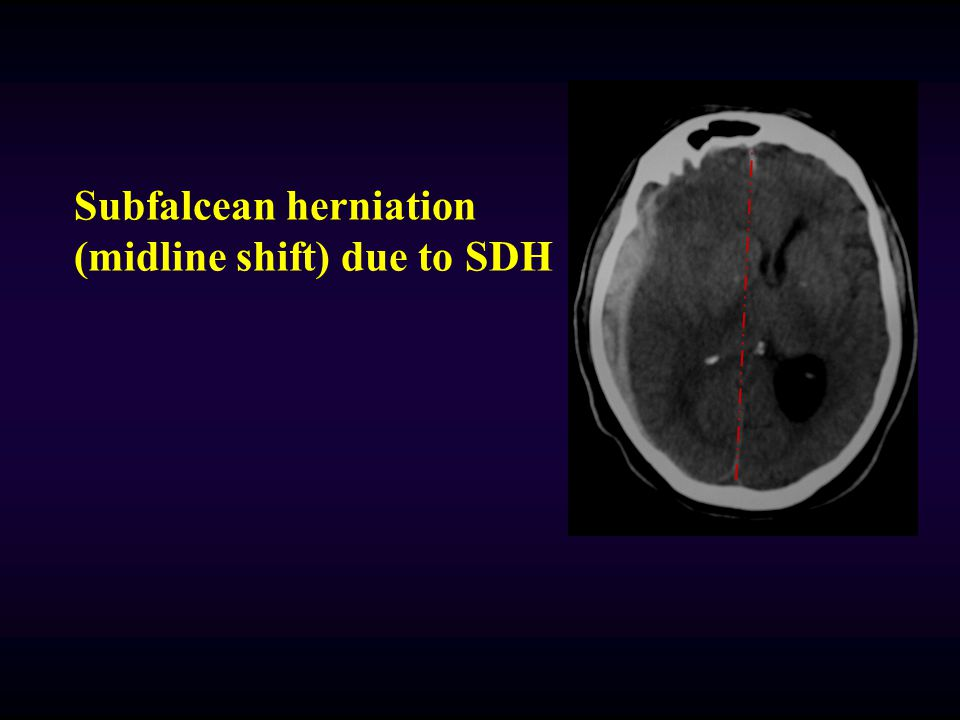 Subfalcean herniation (midline shift) due to SDH