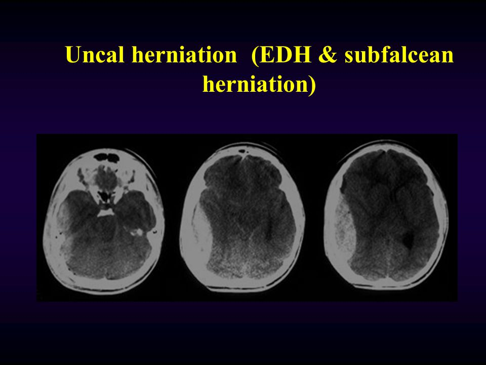Uncal herniation (EDH & subfalcean herniation)