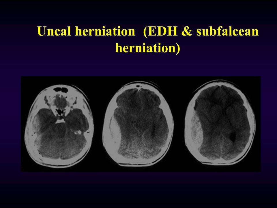 Uncal herniation (EDH & subfalcean herniation)