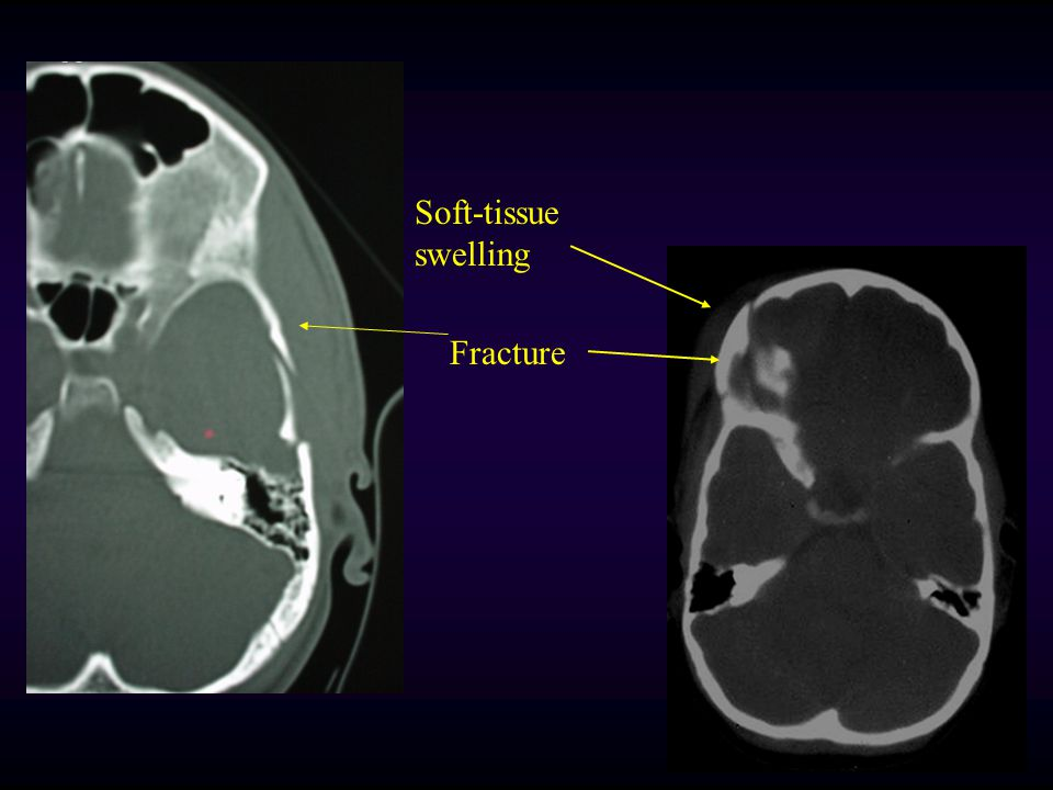 Soft-tissue swelling Fracture