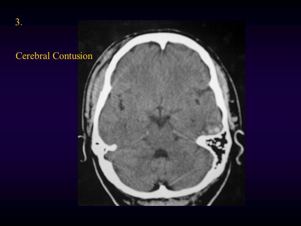 3. Cerebral Contusion