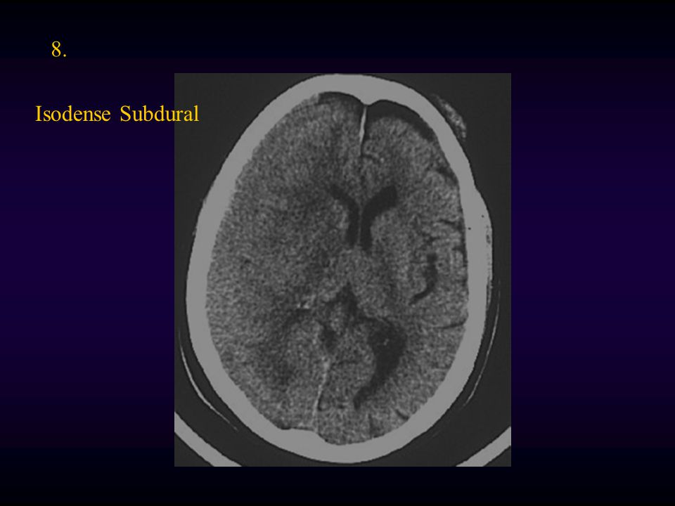 8. Isodense Subdural