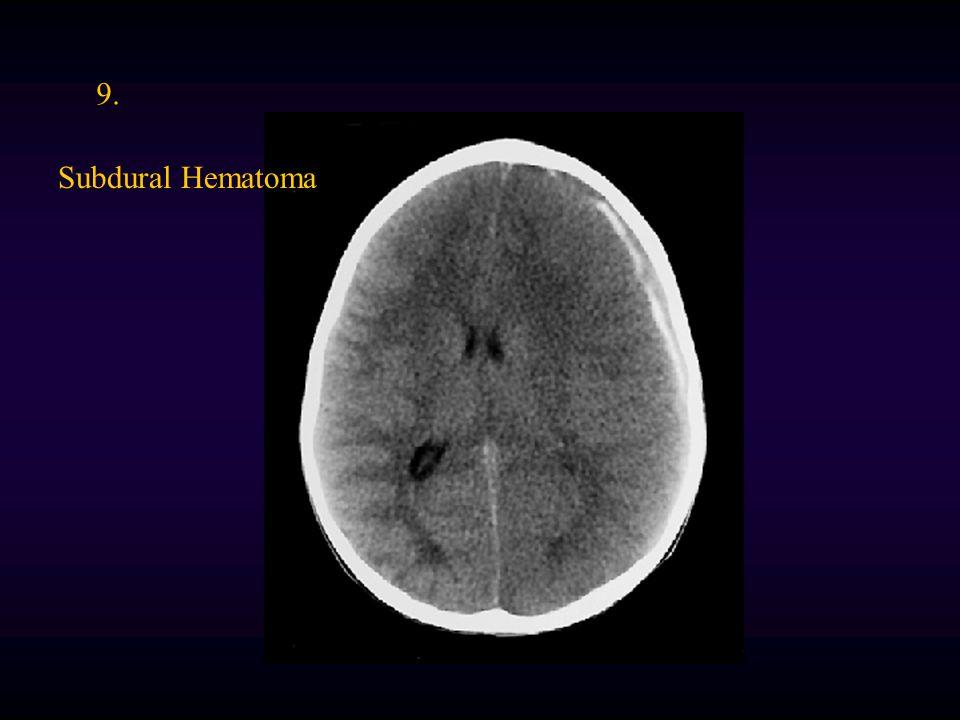 9. Subdural Hematoma
