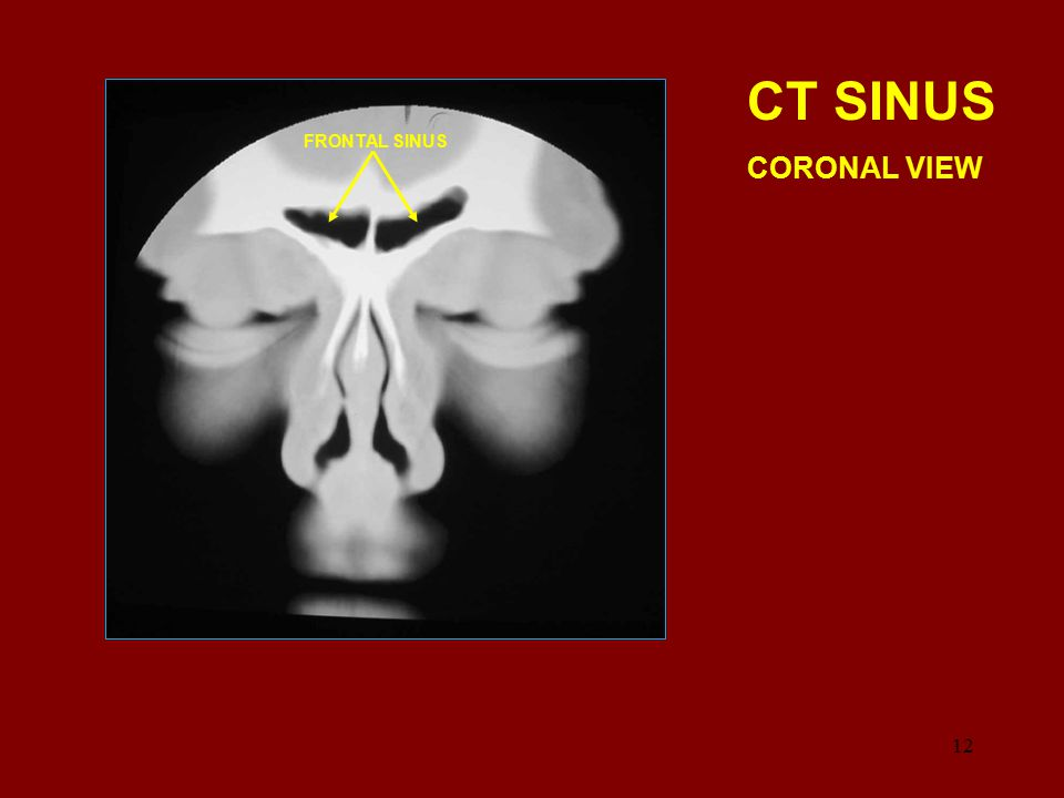 CT SINUS CORONAL VIEW FRONTAL SINUS