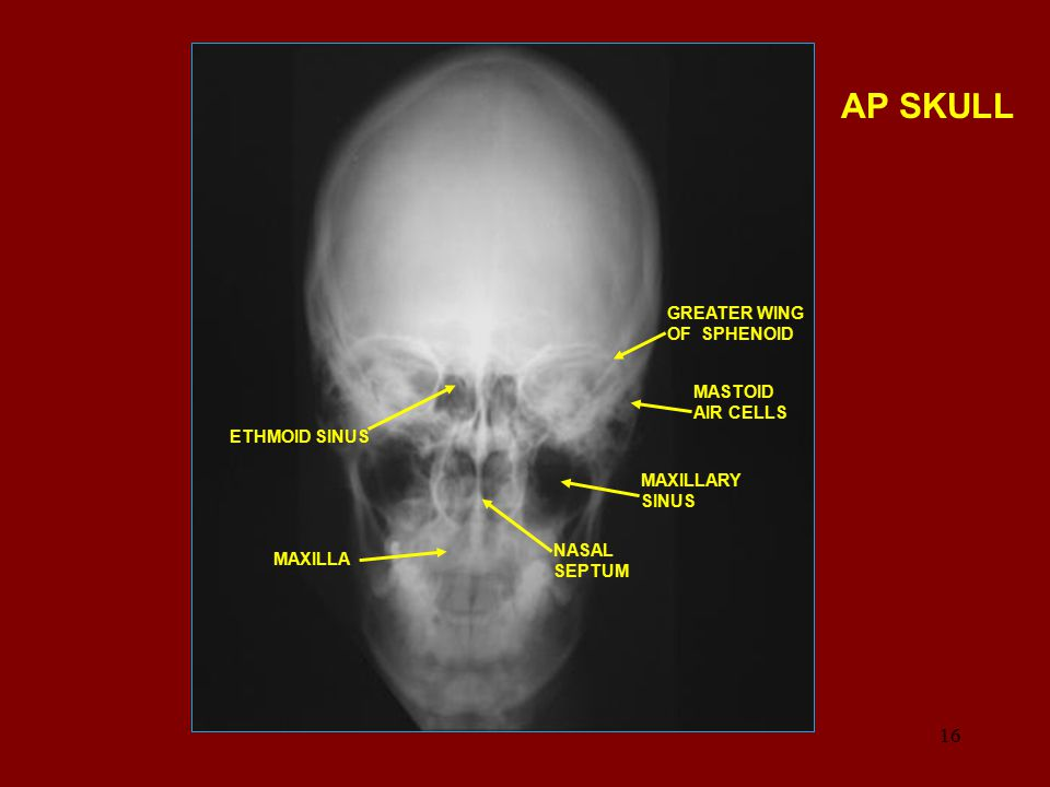 AP SKULL GREATER WING OF SPHENOID MASTOID AIR CELLS ETHMOID SINUS