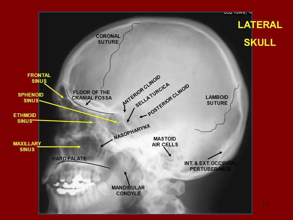 LATERAL SKULL CORONAL SUTURE FRONTAL SINUS ANTERIOR CLINOID